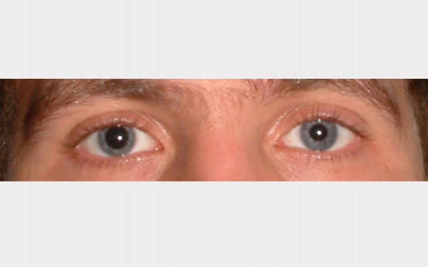 Augen blaue große pupillen große Pupillen