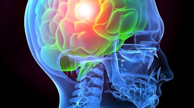Kopfschmerzen als schematische Illustration
