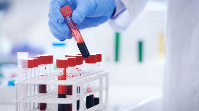 Labormitarbeiter prüft Röhrchen mit Blutproben