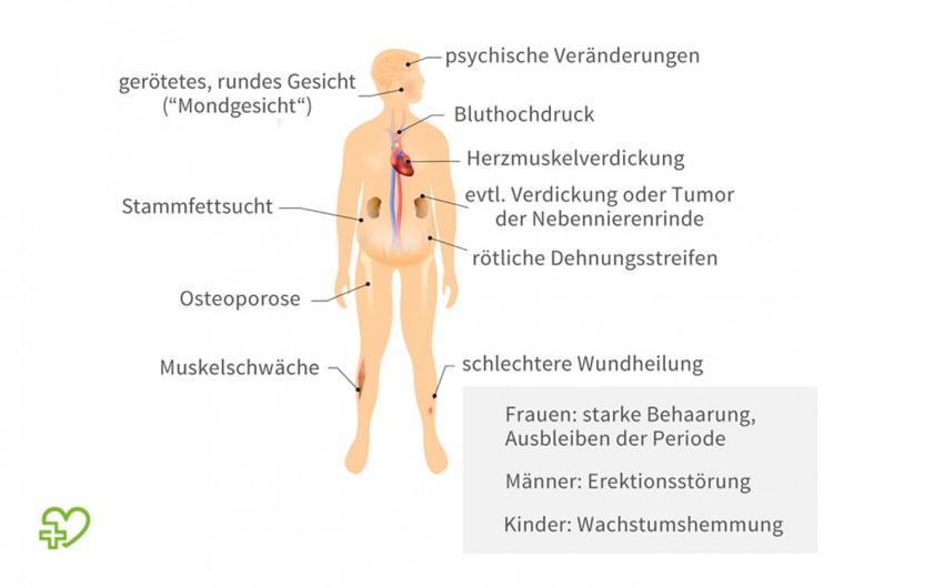 Eine Illustration zu den typischen Symptomen für das Cushing-Syndrom.