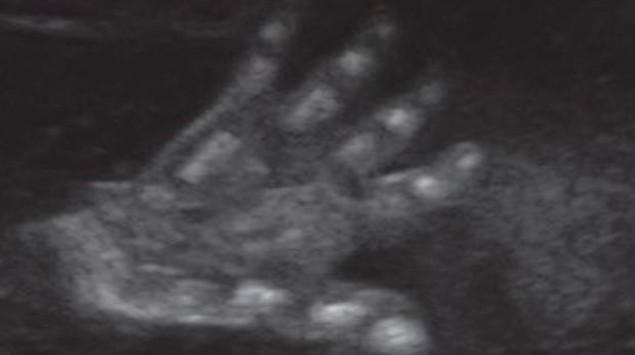 Ultraschall 24. SSW