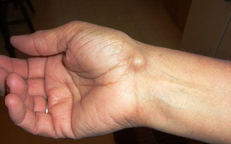 Arm haut am der beule unter Lipome (Knubbel