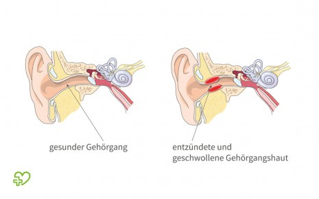Lange krankgeschrieben wie gehörgangsentzündung Gehörgangsentzündung/wie lange