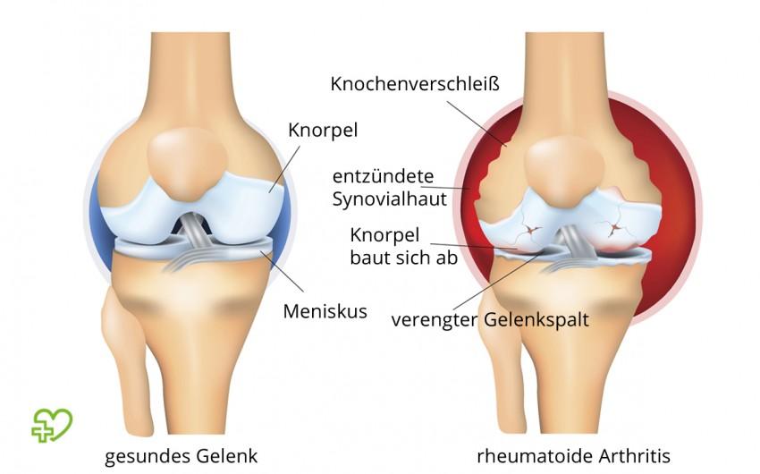 Behandlung reiter syndrom Reaktive Arthritis