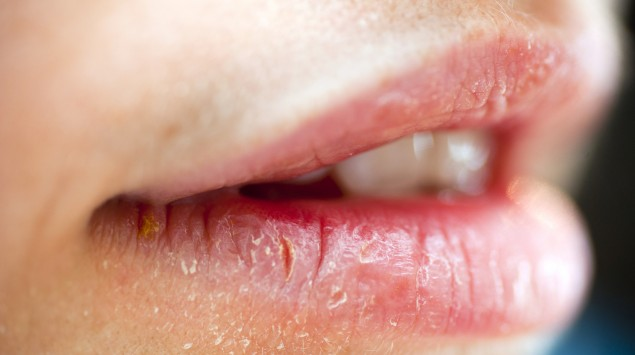Schwillt an lippe allergie Orales Allergiesyndrom