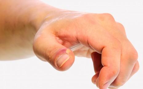 Zehennagel zugsalbe eingewachsener Eiter am
