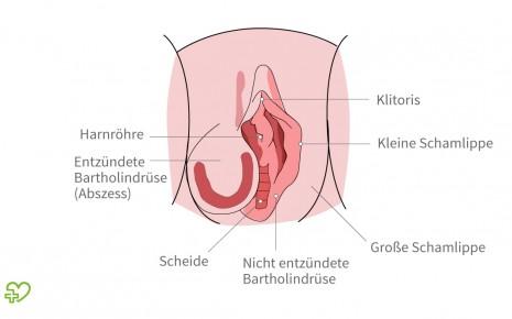 Schamlippe der knubbel an Erbsgroßer Knoten