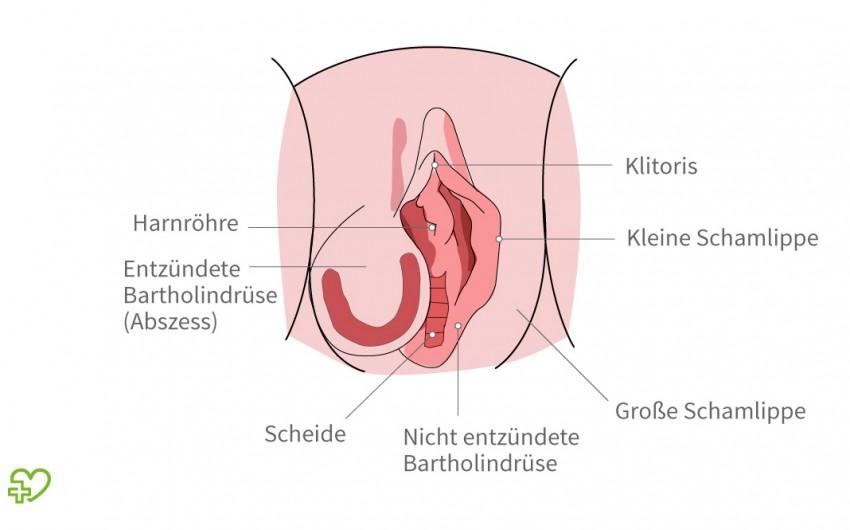 Knoten innere schamlippe schmerzen