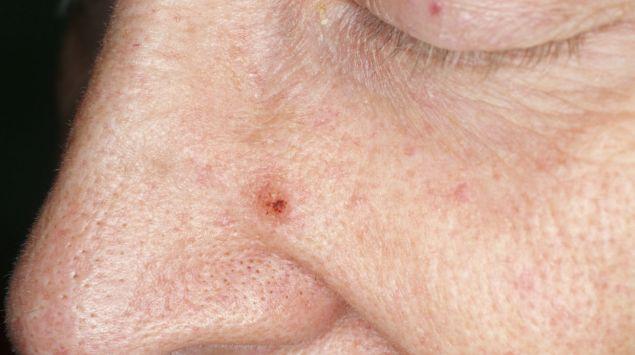 Weißer hautkrebs heilungschancen Weißer Hautkrebs:
