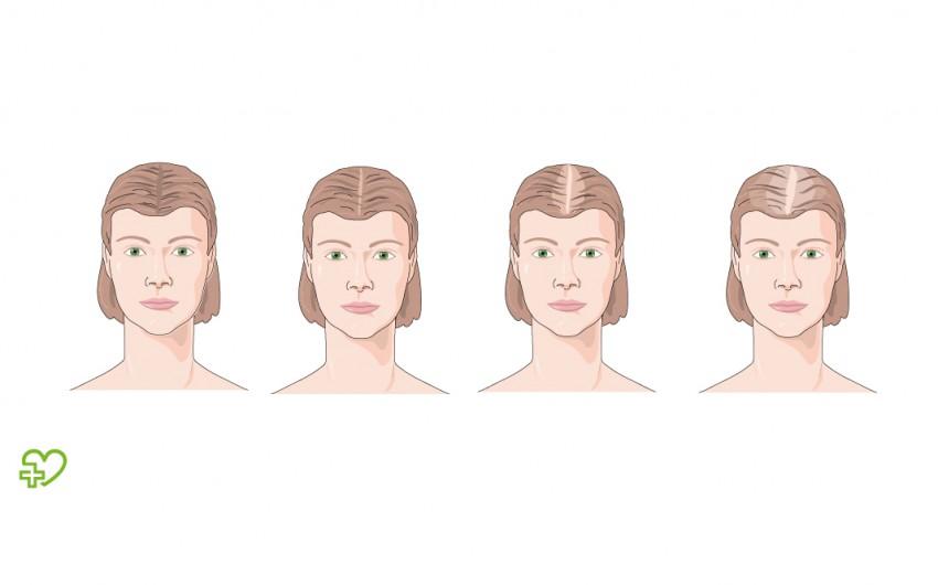 Haarausfall frisur frau bei Haarausfall Welche