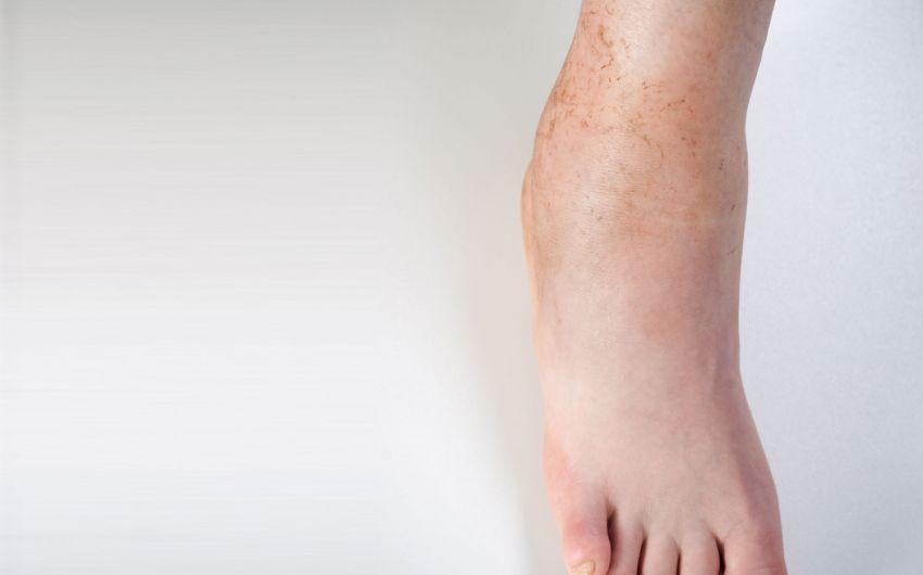 In beinen schmerzen den wegen schwangerschaft wasser schmerzen im