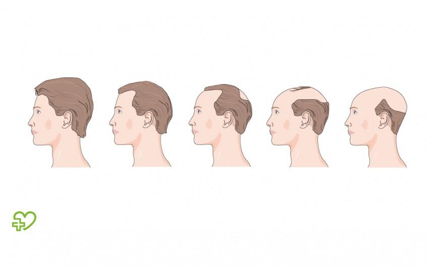 Haarausfall frau bei frisur Haare tönen