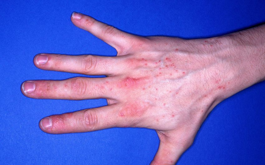 Kontaktallergie und Kontaktekzem: Ursachen, Symptome
