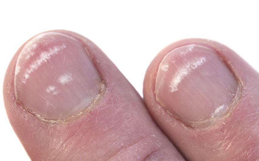 Fußnägel weiße Nagelkrankheiten