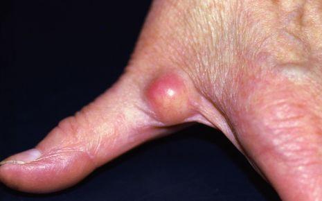 Im finger knubbel Schwellungen und