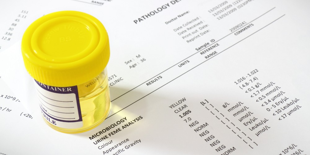 Urinwerte Krankhafte (pathologische) Harnbestandteile..