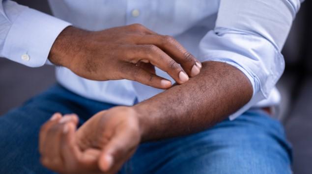 Armschmerzen: Ursachen & Behandlung - Onmeda.de