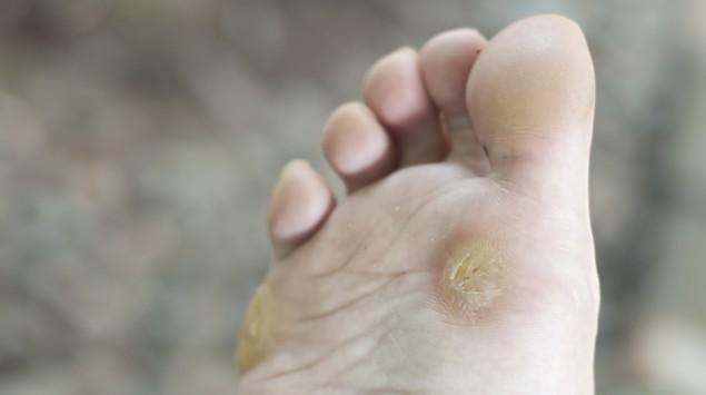 a giardia parazita tünetei kenőcs a papillómákhoz a mell alatt